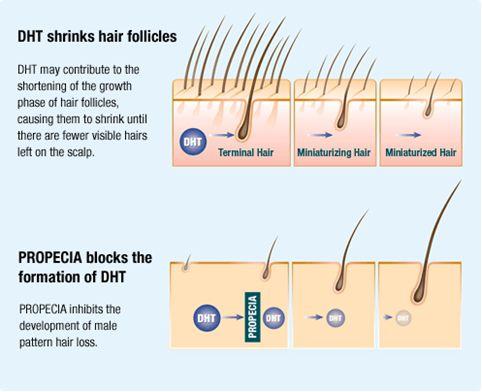OC Neograft Orange County, California DHT Hair Loss Diagram