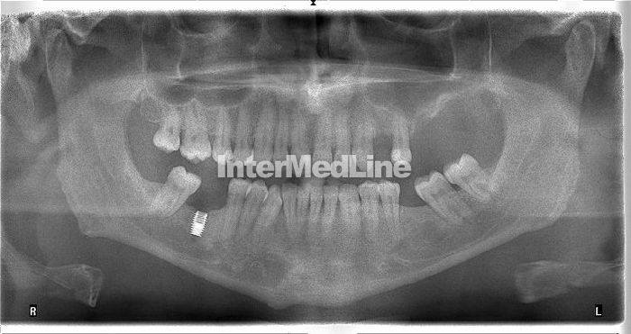 Dental implants Romania, dental works Romania, dental treatments abroad, in Romania. Dental clinics  and dental specialists in Europe, Romania. http://www.intermedline.com/dental-clinics-romania/ Contact Now! office@intermedline.com ; Phone; +1 518 620 42 25  #dentalimplantprocedure #newteethimplants #newteeth #teethimplants #dentalimplantcost #dentalimpantRomania #dentalbridgecost , #beautifulsmile, #smile, #dentistry