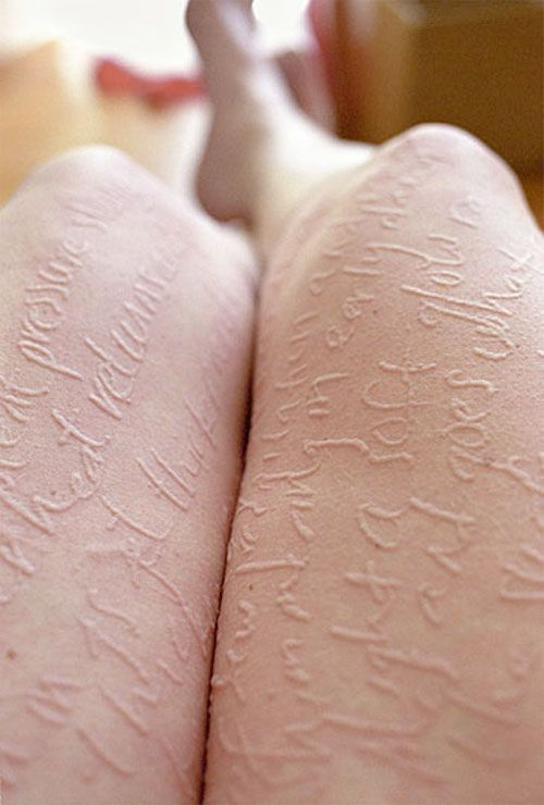 Artist Ariana Page Russell has a skin condition called dermatographic urticaria that causes her skin to become inflamed when lightly scratched. Russell uses the condition to make art on her body.