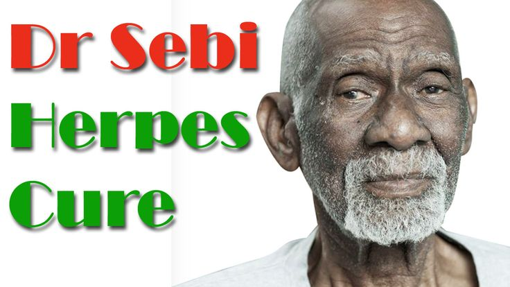 People believes that there is no cure for herpes. But, dr. Sebi has been found the permanent cure for this incurable skin infection. See how natural remedies are helpful in controlling and curing herpes. Here is Dr Sebi Herpes Cure. Watch Now:- https://www.youtube.com/watch?v=xTZxPsbt8E8