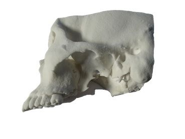 Academic Medical Center (AMC) in Amsterdam prints 3D parts in preparation for the cranium surgery