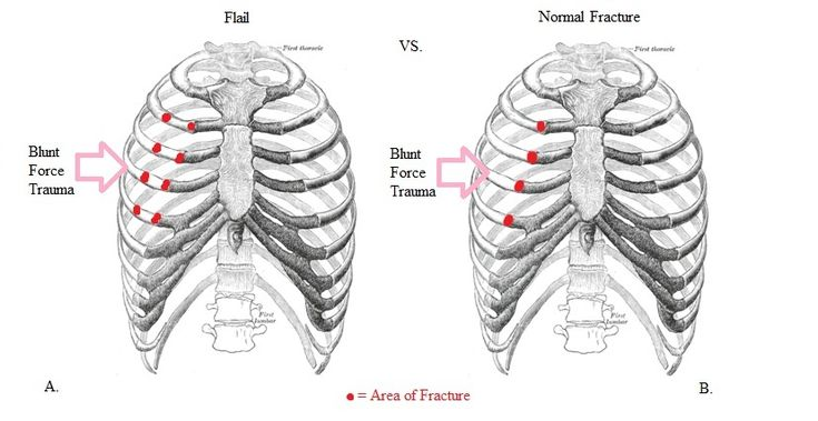 Doctors Hub: What is flail chest?