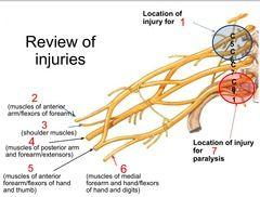 1 = Erb's Palsy 2 = Musculocutaneous N.  3 = Axillary N. 4 = Radial N.  5 = Median N. 6 = Ulnar N. 7 = Klumpke's paralysis/palsy
