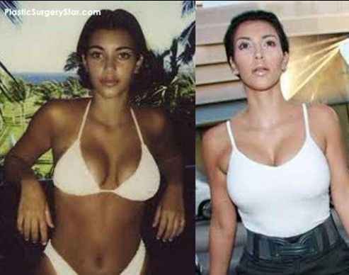 Kim Kardashian but Implants Before and After | Kim Kardashian Plastic Surgery Before and After: Botox, Boob Job, Nose ...