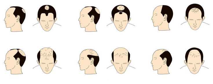 7 Hair Fall Reasons And Remedies | How To Prevent Your Hair Loss