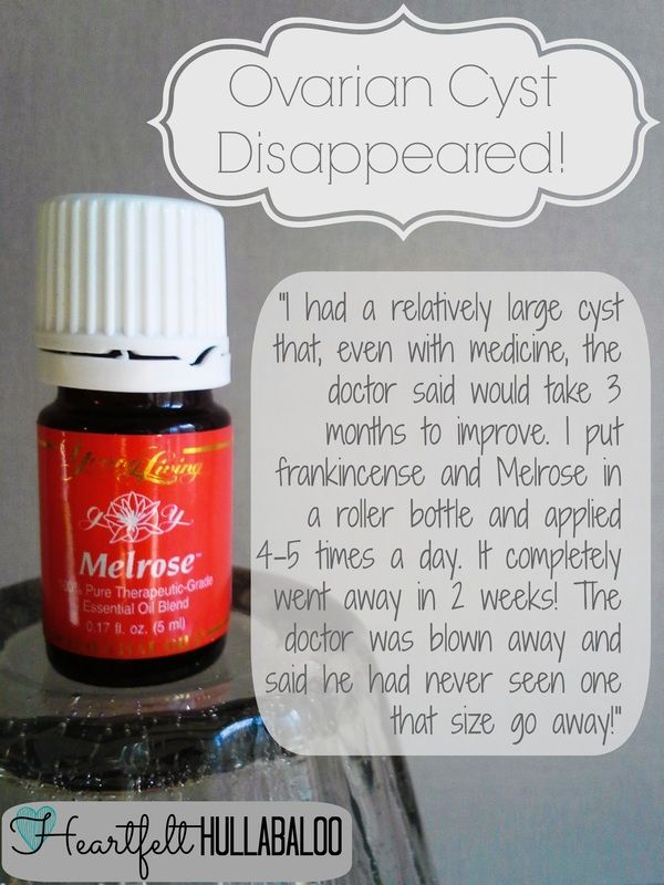 Large ovarian cyst disappears after two weeks of topical application of frankincense and Melrose! www.heartfelthullabaloo.com #youngliving #essentialoils