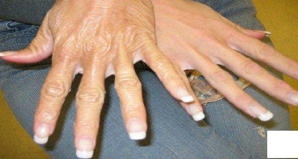 Une recette incroyable pour que vos mains ne divulguent plus votre âge !