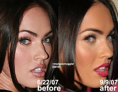 Megan Fox nose job                                                                                                                                                     Mehr