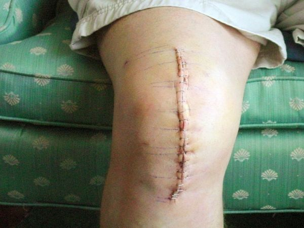 Knee Replacement Surgery Scar