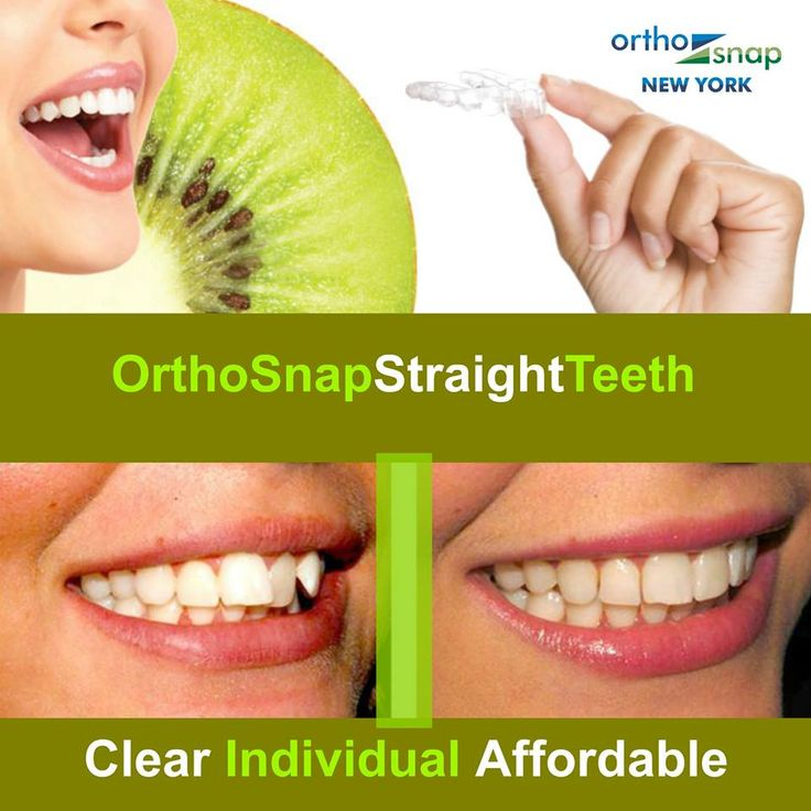 STRAIGHTEN TEETH without unsightly and uncomfortable metal braces | ‪#‎OrthoSnap‬ New York offers true and only effective alternative to traditional braces | invisible, convenient, removable and as effective as braces | ‪#‎Manhattan‬ and ‪#‎Brooklyn‬ ‪#‎NewYork‬ | Dr. Irina Feldbein | 1.844.678.4676 | http://www.OrthoSnapNY.com/ | ‪#‎ClearBraces‬ ‪#‎InvisibleBraces‬ ‪#‎AdultBraces‬ ‪#‎StraightTeeth‬ ‪#‎TeethStraightening‬ ‪#‎BracesAlternative‬ ‪#‎StraightenTeethWithoutBraces‬