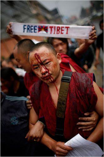 Tibetan monk after being beaten at a Free Tibet rally.