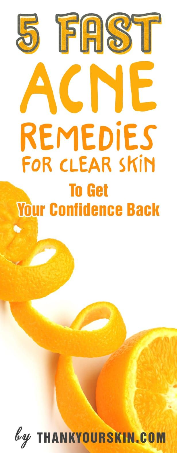 5 Fast Acne Remedies For Clear Skin To Get Your Confidence Back. How to get rid of pimples overnight with natural remedies that work!  https://www.thankyourskin.com/acne-remedies-fast-clear-skin/