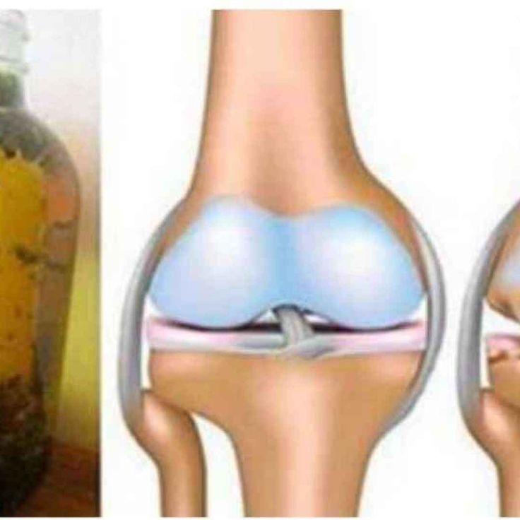 Può capitare, col tempo di avvertire dolore alle gambe, in particolare alle ginocchia, dolore intenso dovuto soprattutto all'usura delle stesse. In particolare, a consumarsi lentamente ed inesorabilm