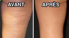 La cellulite peut sincruster partout dans le corps : bras, cuisses et ventre. Mais pas la peine dacheter des crèmes qui coûtent un bras ! Heureusement, il existe des remèdes de grand-mère pou...