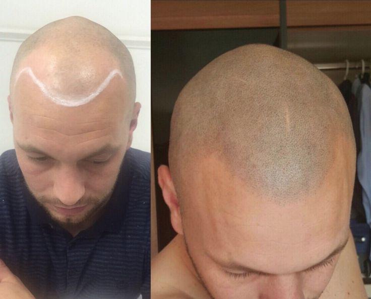 Skalp - Recognised as the industry leader in Scalp Micropigmentation. #Skalp #hairloss #balding #bald