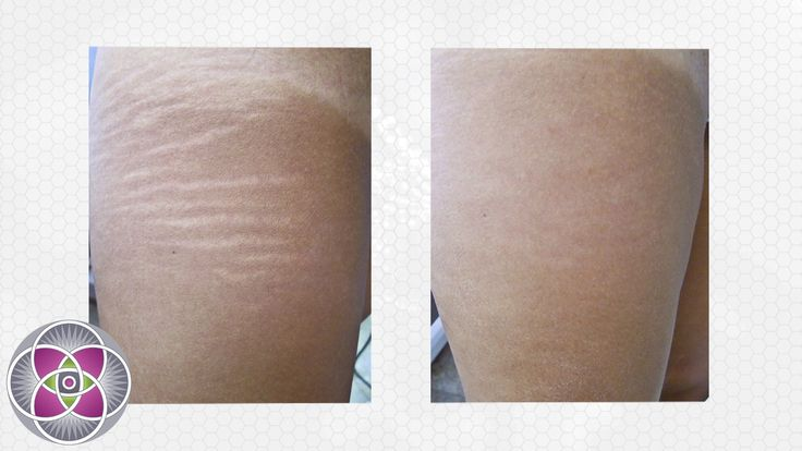 Laser Stretch Marks Removal Treatment Clip