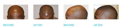 Are you wanting the look of a full head of hair but don't want to undergo surgery for a hair transplant? Don't want to wear and maintain a hair piece? PAI Medical Group is proud to offer Scalp Micro-Pigmentation. #PAI #SMP #HairLossSolution