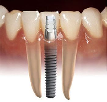 implant teeth & possible neurological problems & exacerbation of auto immune disorders