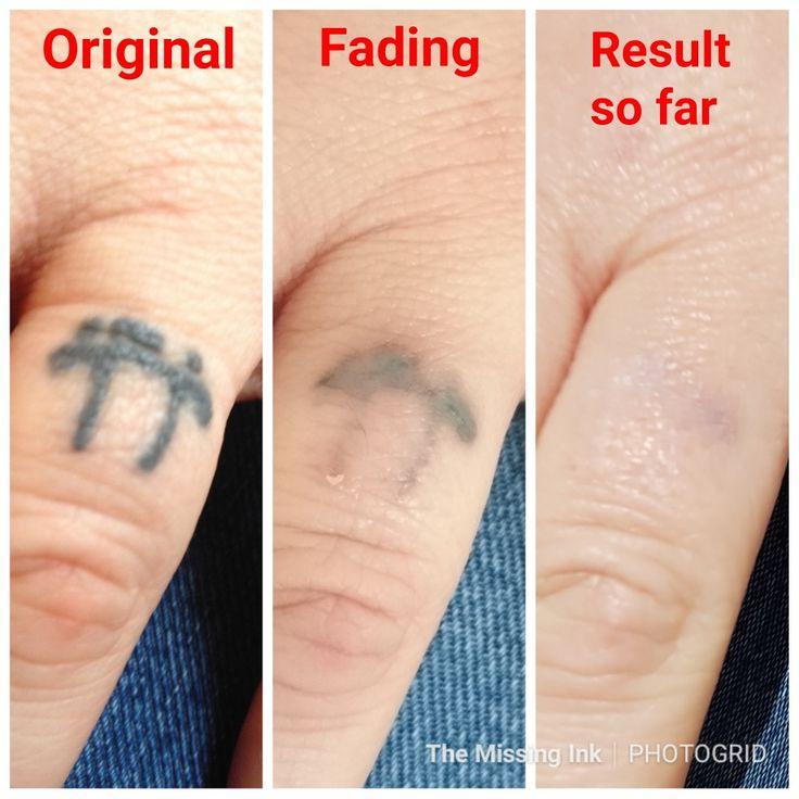 29+ Best Laser tattoo removal surabaya ideas