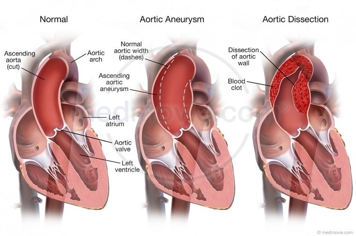 Normal Aortic Aortic Aneurysm Aortic Dissection