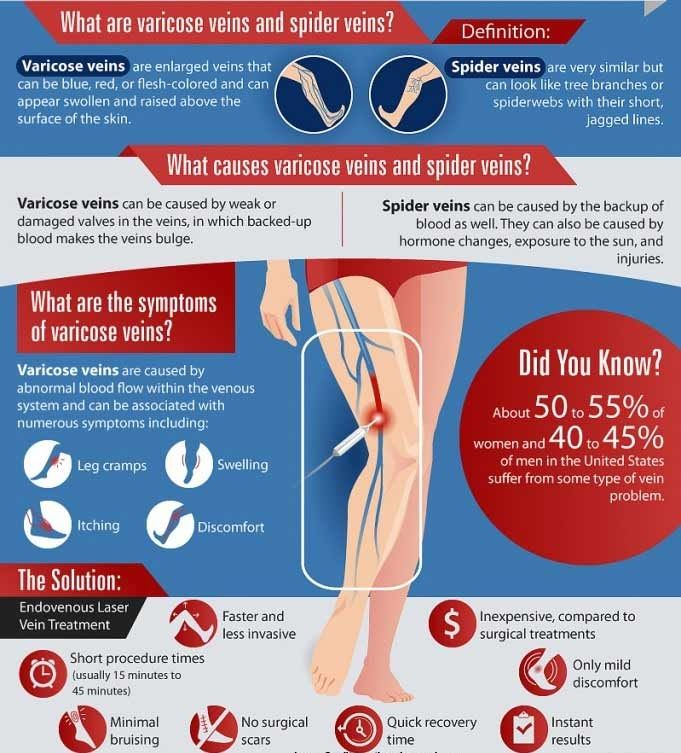 52 best varicose veins images on pinterest | varicose veins, Cephalic Vein