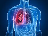 Acute bronchitis, symptoms of Acute bronchitis, treatment of Acute bronchitis, causes of bronchitis