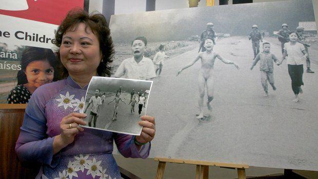 'Napalmmeisje' van beroemde foto mogelijk eindelijk zonder pijn
