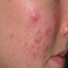 Tea tree oil is good for acne scars and yeast infcetion