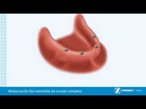 Protesis Fija Sobre Implantes-Brossard-La Prairie-St-Hubert-Longueuil-Ca...