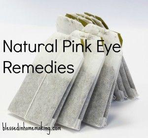 Natural Pink Eye Remedies