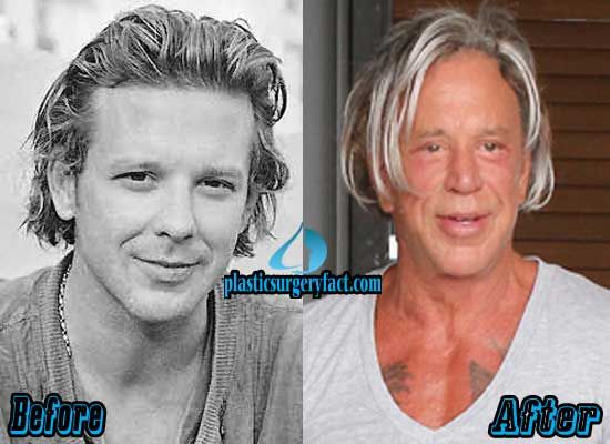 Mickey Rourke Botched Plastic Surgery | http://plasticsurgeryfact.com/mickey-rourke-plastic-surgery-gone-wrong/
