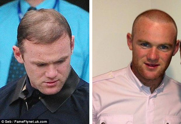 Awesome Wayne Rooney Hair Transplant: Before & After Procedure