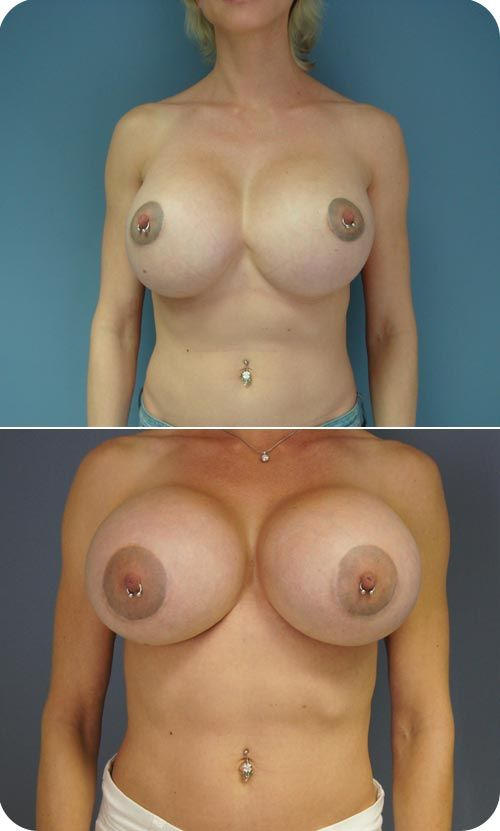 Facts About Breast Implants - Our Bodies Ourselves