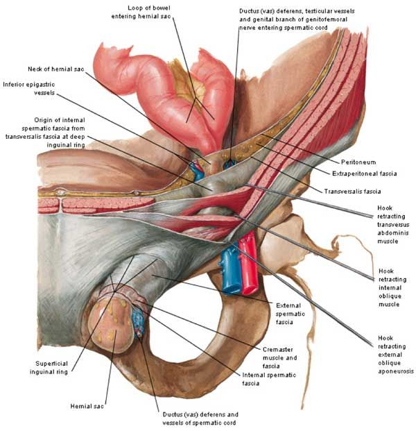 13 Best Inguinal Hernia Images On Pinterest Hernia Inguinal