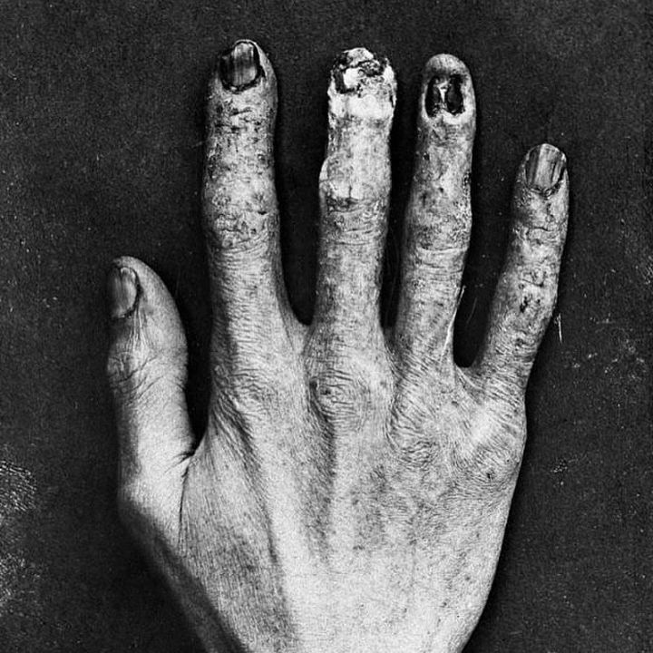 """- Wellcome Library (@wellcomelibrary) on Instagram: """"Great #repost from @drlindseyfitzharris! 🔽🔽🔽 X-ray technician's hand showing damage from radiation…"""""""