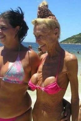 Old Breast Implants Pictures | imagine many of you have pondered what breast implants will look ...