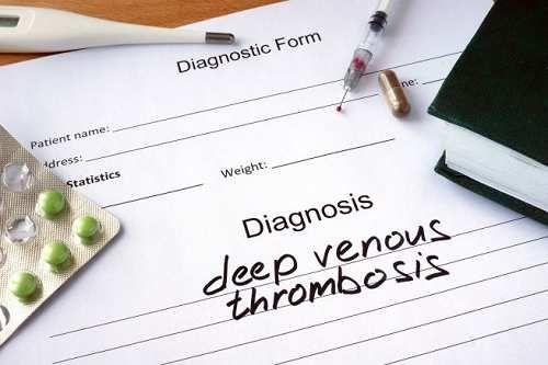 Salute: #Giornata #nazionale #lotta alla trombosi: 10 cose da fare per non correre rischi (link: http://ift.tt/2n70uov )