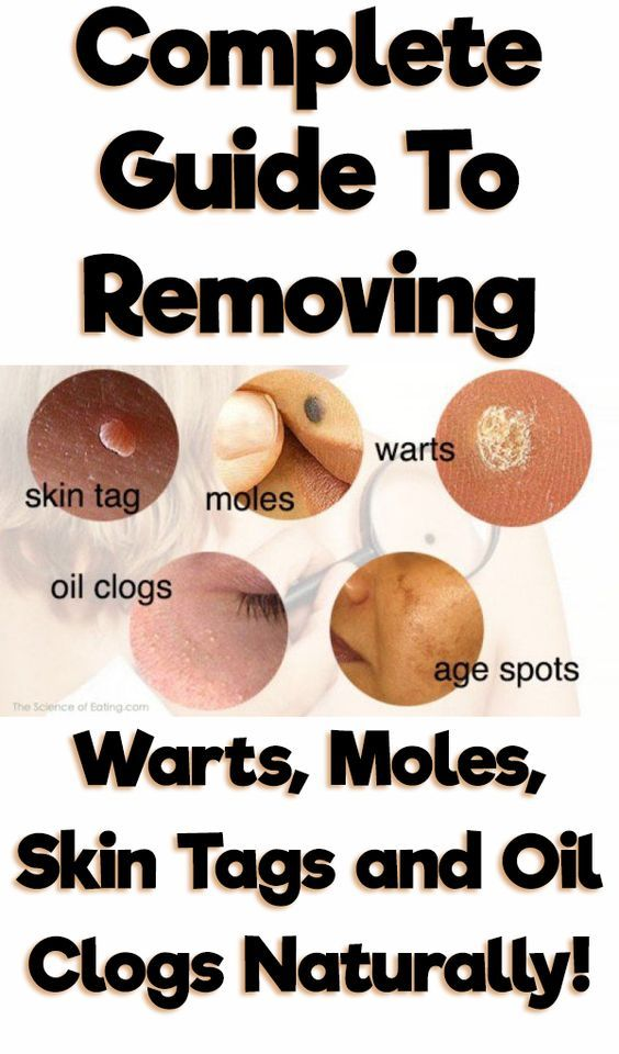Why Skin Tags appear in your body? Skin tags could be formed anywhere in your body, it is developed due to friction from our outfit or where folds of skin available. The most common place for skin …