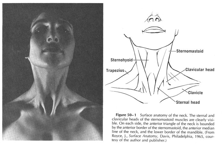Anterior Neck Triangle | muscles | Pinterest | Neck muscle anatomy ...