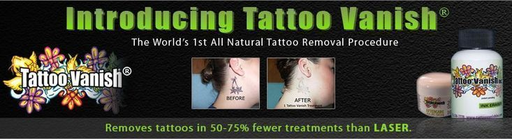 Las Vegas Tattoo Removal by Tattoo Vanish.  We remove tattoos in Las Vegas and we are Las Vegas's best tattoo removal company.  We offer Non Laser Tattoo Removal, which is more effective that Laser Tattoo Removal, requires less treatments and as it is more cost effective. Call Today 702-256-7778. #tattooremovalcost #removetattoos
