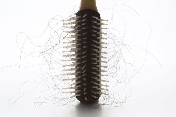 Why Is There Hair Loss When You Suffer from Lupus? #hairlosswomenremedies