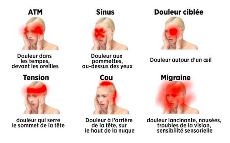 Bon à savoir : Voici la liste des maux de tête dangereux