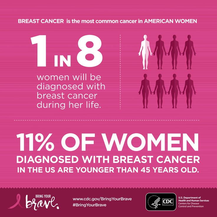 Breast Cancer in Young Women