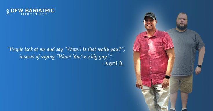 Kent Was Able To Lose 150 Pounds After His Gastric Sleeve Surgery At
