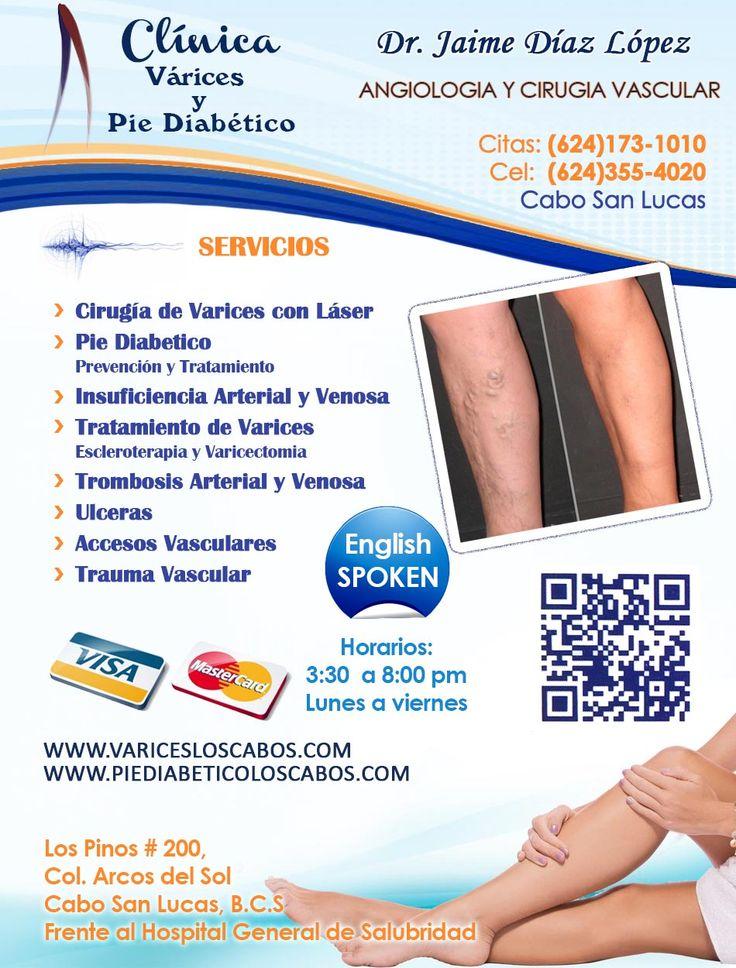 Clinica de Varices y Pie Diabetico Los Cabos
