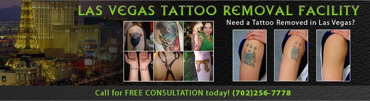 Las Vegas Tattoo Removal by Tattoo Vanish.  We remove tattoos in Las Vegas and we are Las Vegas's best tattoo removal company.  We offer Non Laser Tattoo Removal, which is more effective that Laser Tattoo Removal, requires less treatments and as it is more cost effective. Call Today 702-256-7778.