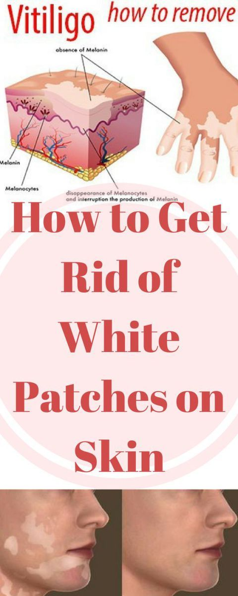 In medical terms, white patches on the skin are known as vitiligo. This can appear on different body parts including the hands, feet, arms, legs, face, lips, and around the eyes and mouth.a The exa…