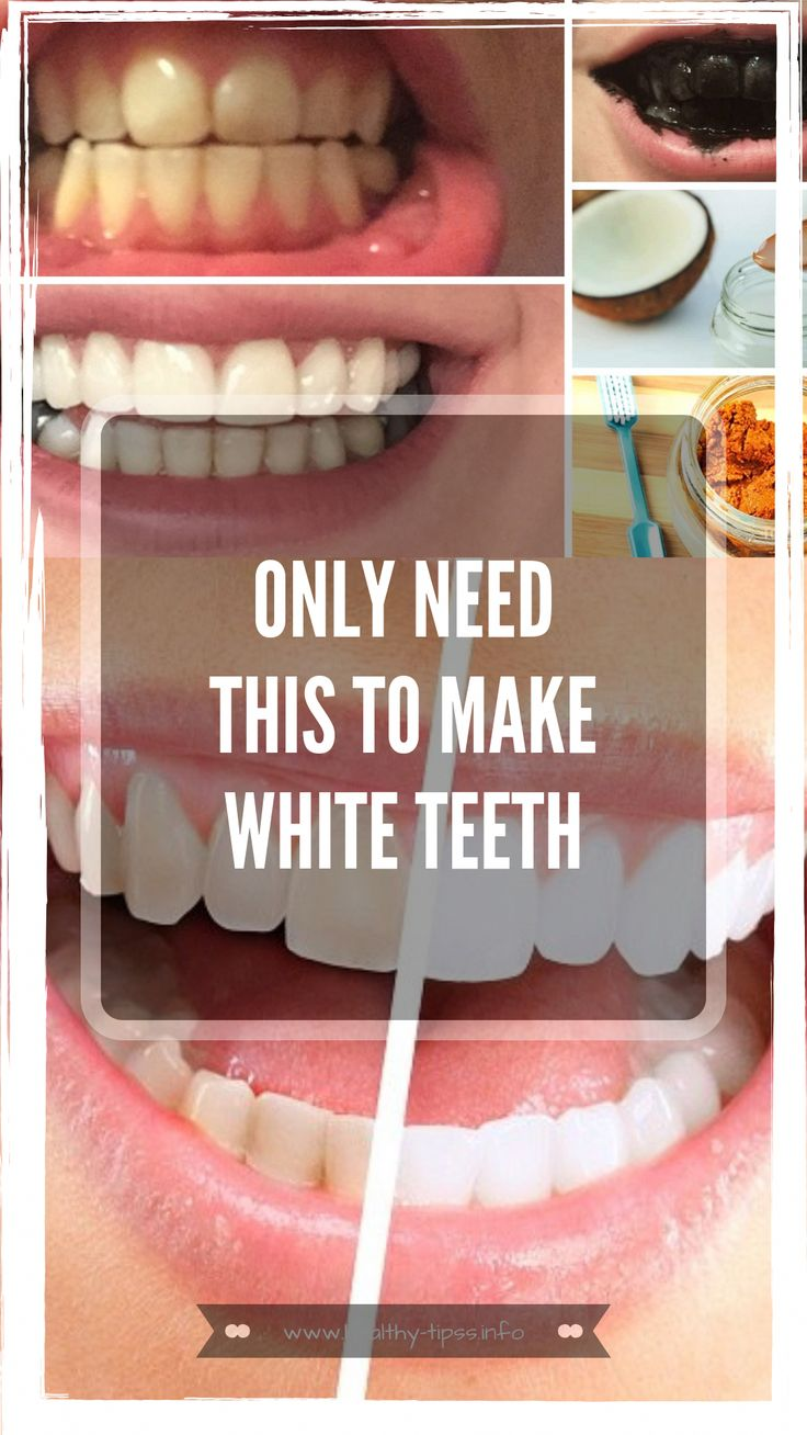 pearly white teeth are a sign of good dental hygiene and