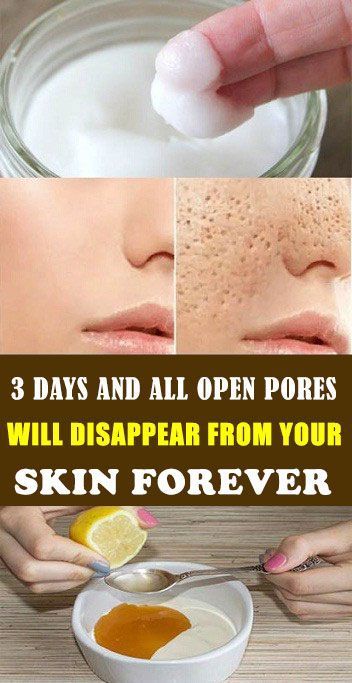 three Days Open Pores Therapy and it Will Disappear From Your Pores and skin Completely