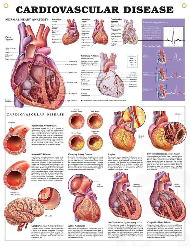 Cardiovascular Disease anatomy poster details normal heart anatomy and the top cardiovascular diseases (CVD).